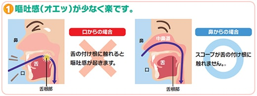 内視鏡検査1